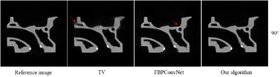 ADMM-based deep reconstruction for limited-angle CT - IOPscience