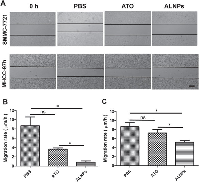 Arsenite-loaded nanoparticles inhibit the invasion and metastasis of