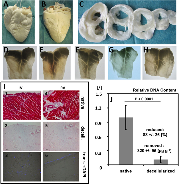 Mechanistics of biomass discharge during whole-heart