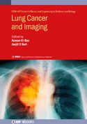 Lung Cancer and Imaging cover